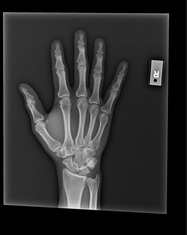 crosscut_xray_after